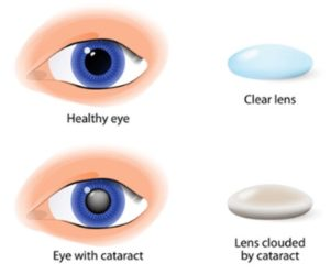 Cataract Surgery In Ontario Eye Physicians And Surgeons Of Ontario